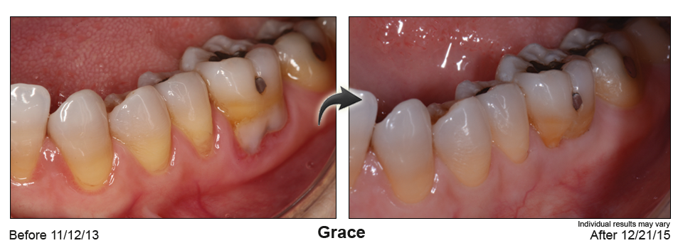fix gum recession Sterling Heights