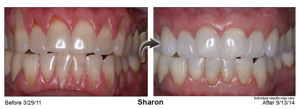 gum recession treatment Sterling Heights